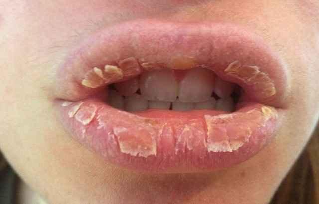 Viêm môi bong vảy