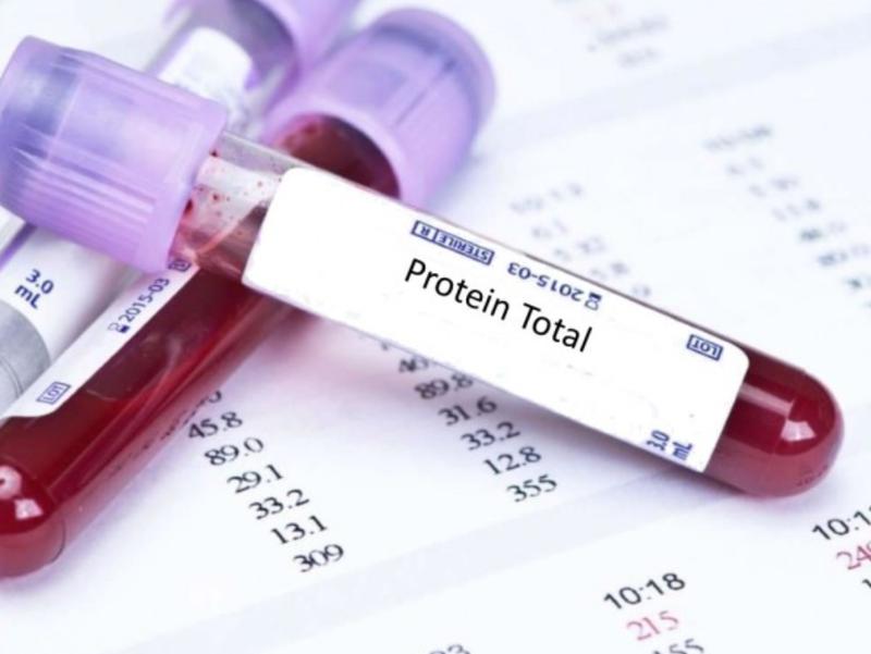 Định lượng Protein toàn phần để làm gì?
