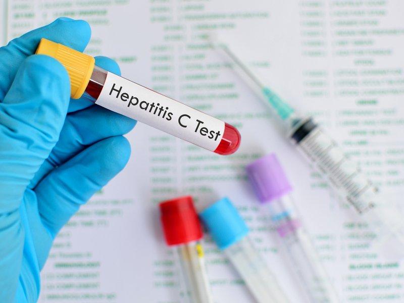 HCV Ab
