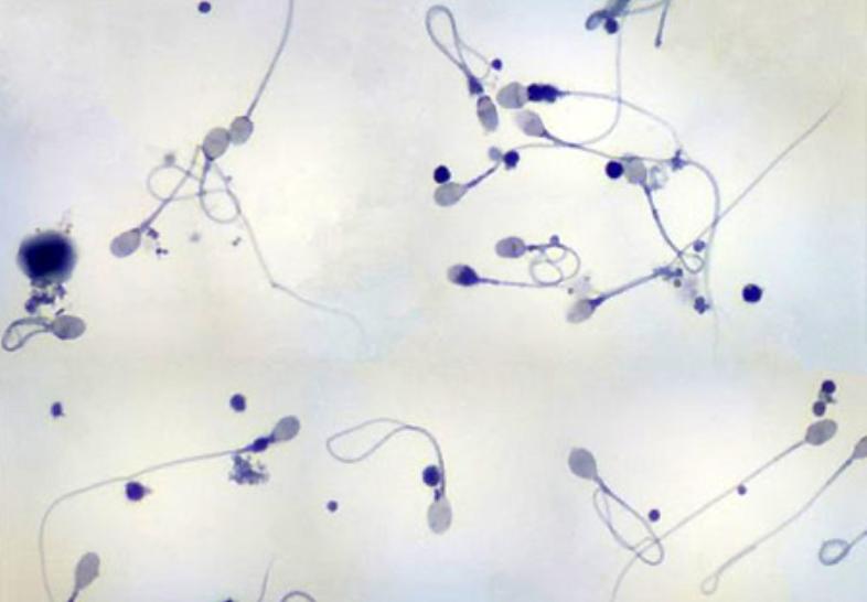 Tinh trùng