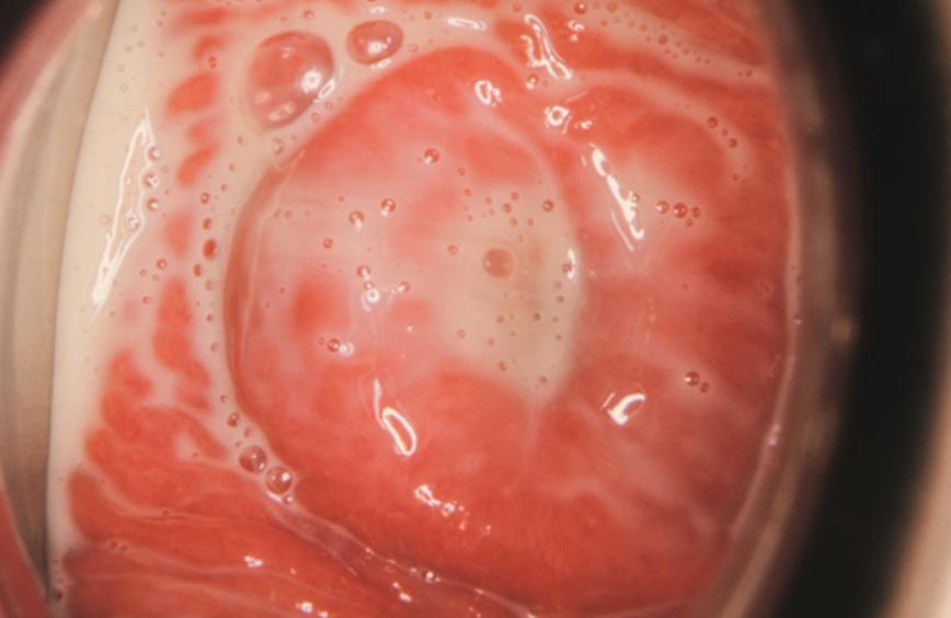 Trichomoniázis tünetei és kezelése