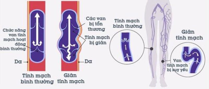 Cơ chế gây ra suy giãn tĩnh mạch chi dưới
