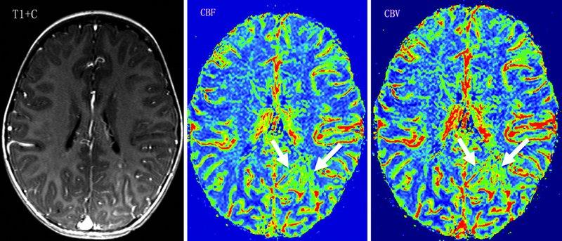 Chụp CT mạch máu não