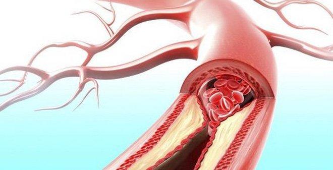 Tắc động mạch chủ