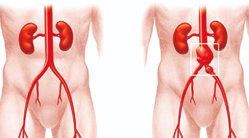 Động mạch chủ bụng