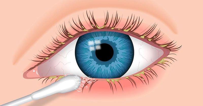Điều trị viêm bờ mi mắt
