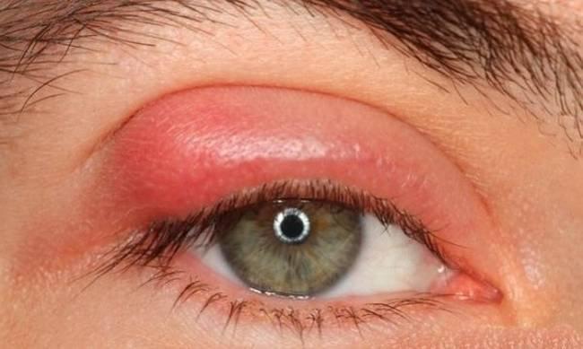 Viêm bờ mi mắt điều trị thế nào?