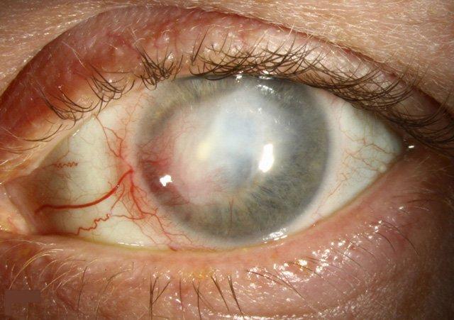 Viêm giác mạc do herpes
