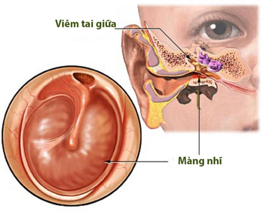 Viêm tai giữa mạn tính