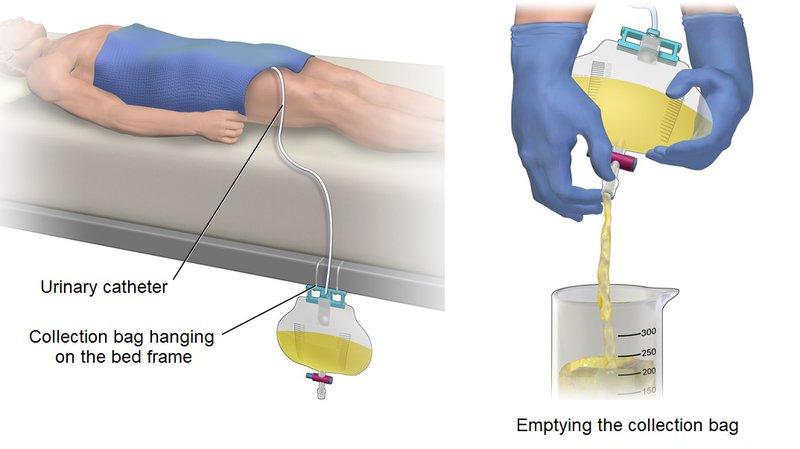 Bệnh nhân đặt ống thông tiểu