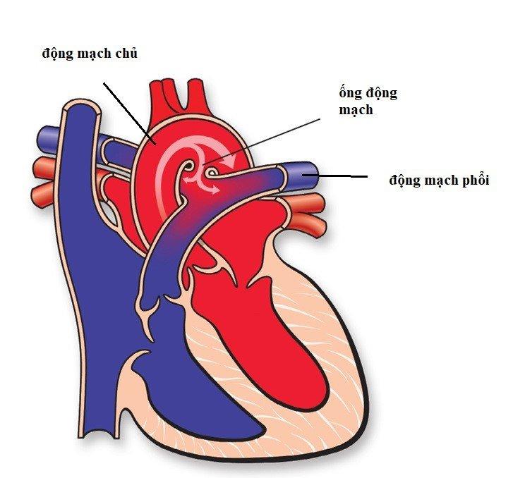 Ống động mạch