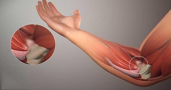 Viêm điểm bám gân lồi cầu xương cánh tay