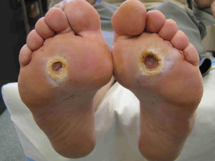 Biến chứng tiểu đường loét bàn chân