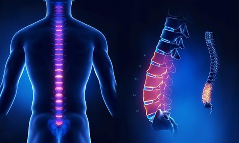 MRI cột sống thắt lưng
