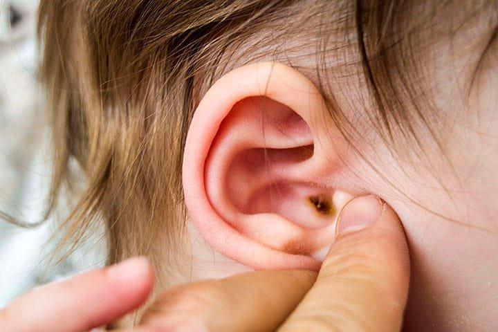 Viêm tai ngoài ở trẻ