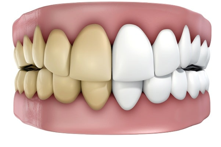Thuốc tẩy trắng răng
