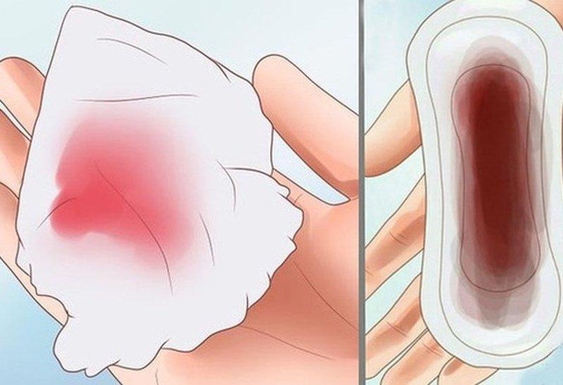 Ra máu nâu sau uống thuốc tránh thai khẩn cấp