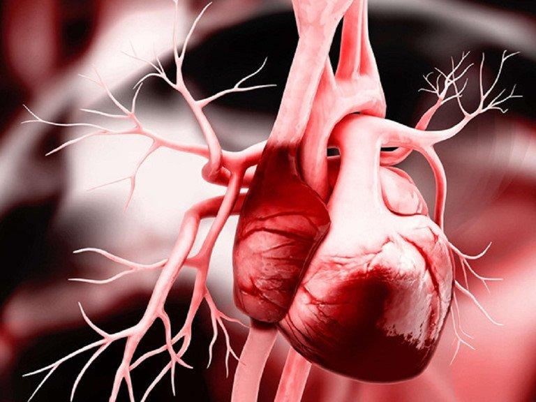Sốc tim trong nhồi máu cơ tim