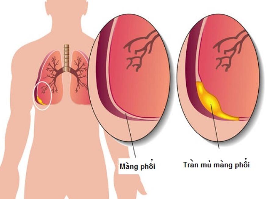 Viêm mủ màng phổi: Triệu chứng và biến chứng   Vinmec