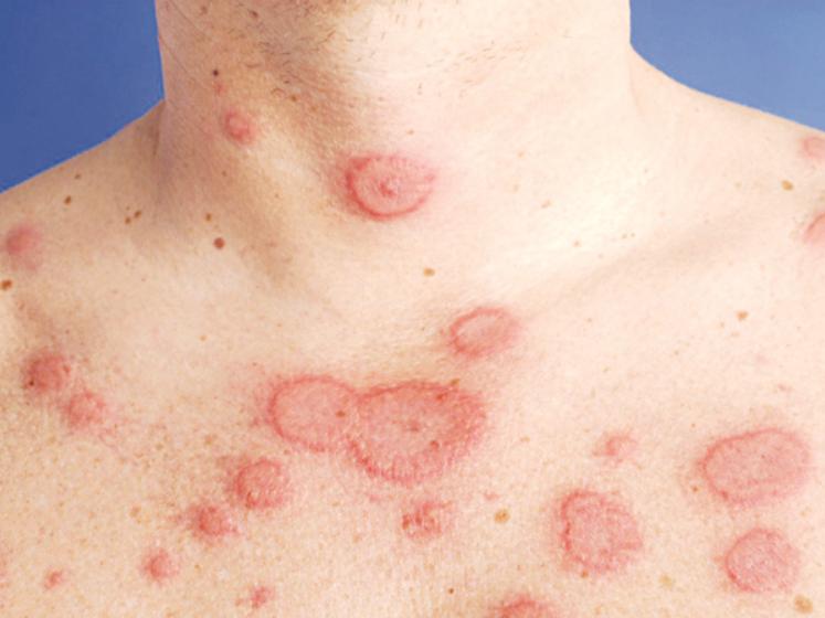 Bệnh lupus ban đỏ dạng đĩa