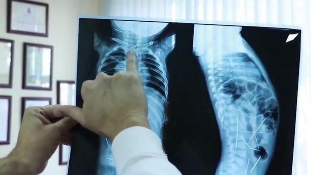 Lưu ý khi chụp X-quang cho bé