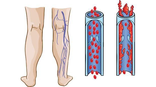 Bệnh lý thuyên tắc huyết khối tĩnh mạch