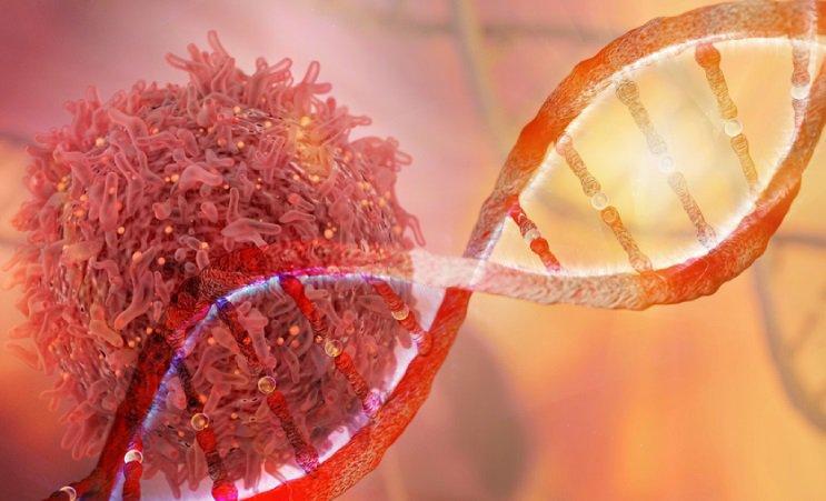 Bệnh ung thư vú có di truyền không? | Vinmec