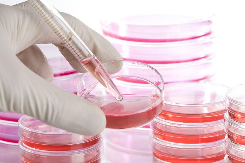 Liệu pháp chất tiết tế bào gốc (EXOSOME)