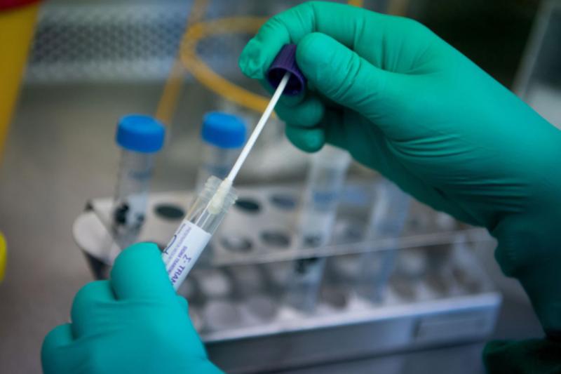 Chỉ định xét nghiệm chẩn đoán virus corona
