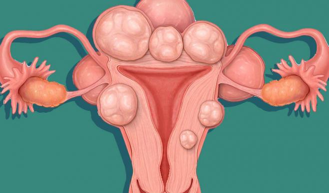 Thai phụ bị u xơ tử cung có cần hạn chế đi lại để giữ thai không