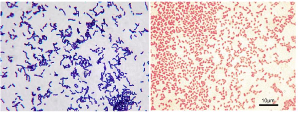 Vi khuẩn gram âm và gram dương