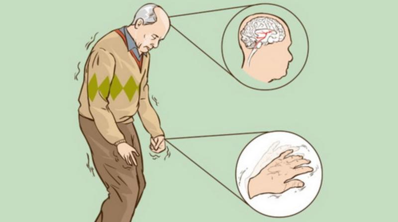 Hội chứng Parkinson