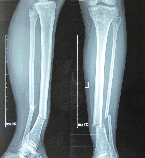 Xquang xương cẳng chân