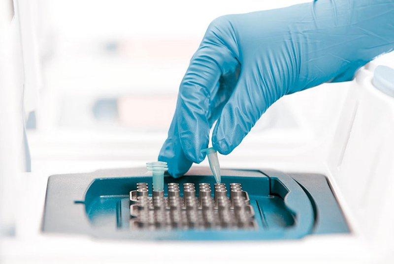 Xét nghiệm nào giúp phát hiện virus Corona?