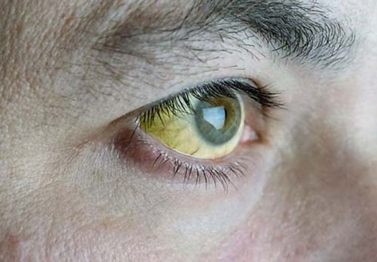 Vàng mắt