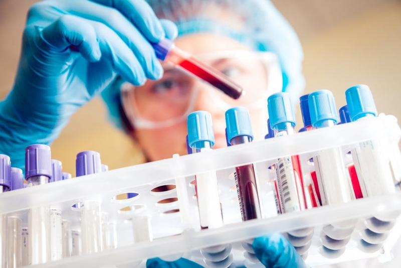 Các trường hợp cần xét nghiệm ure trong máu