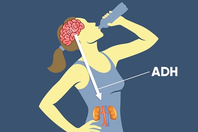 Hội chứng tăng tiết ADH