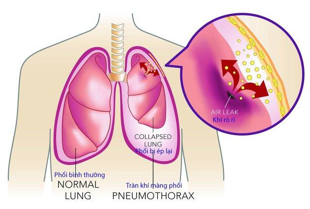 Vì sao có tình trạng tràn khí màng phổi tự phát? | Vinmec
