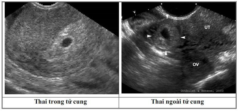 Thai ngoài tử cung