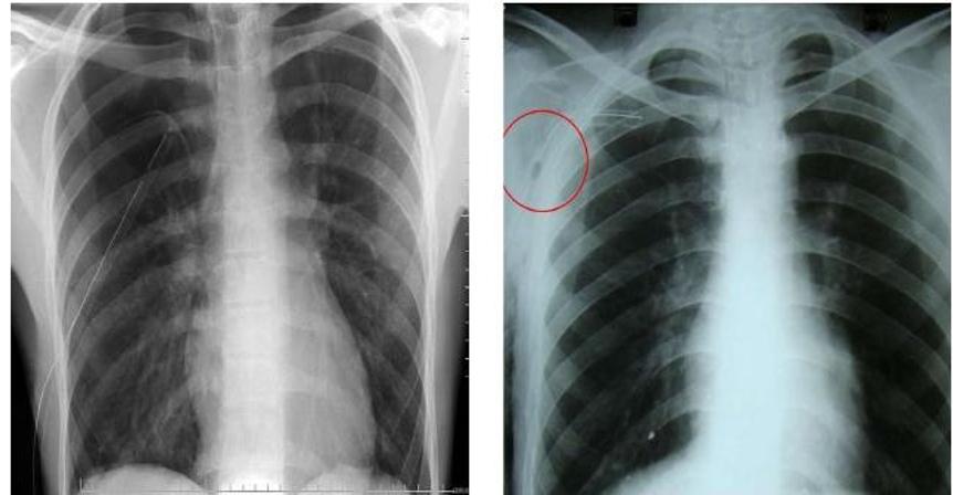 Hình ảnh X-quang viêm phổi thùy | Vinmec
