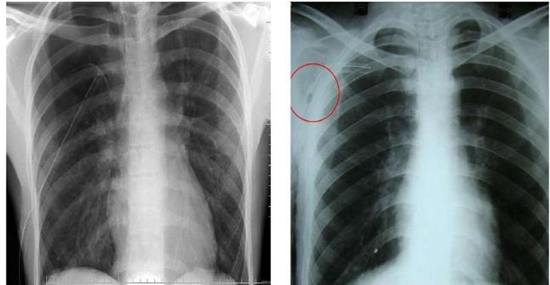 hình ảnh X-quang phổi