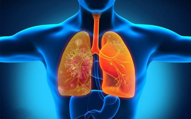 bệnh viêm phổi hít