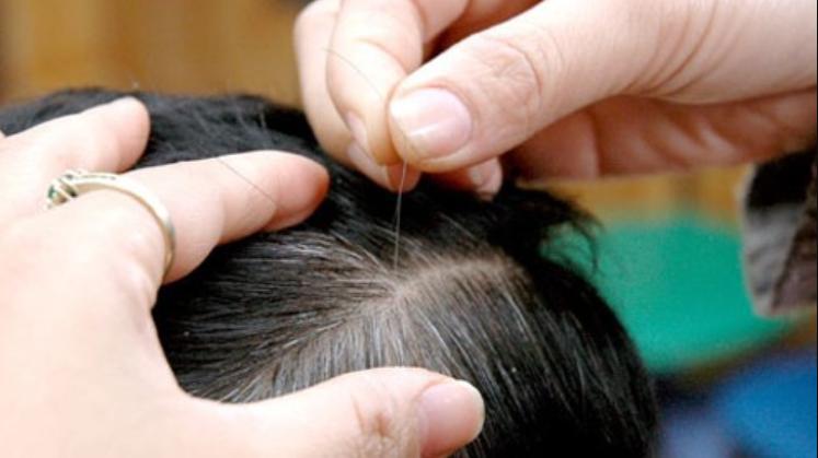Bệnh tóc bạc sớm ở trẻ em