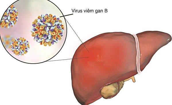 Lưu ý khi sử dụng thuốc kháng virus viêm gan B