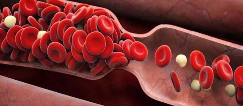 Bị tắc mạch máu có chữa được không và bằng cách nào?