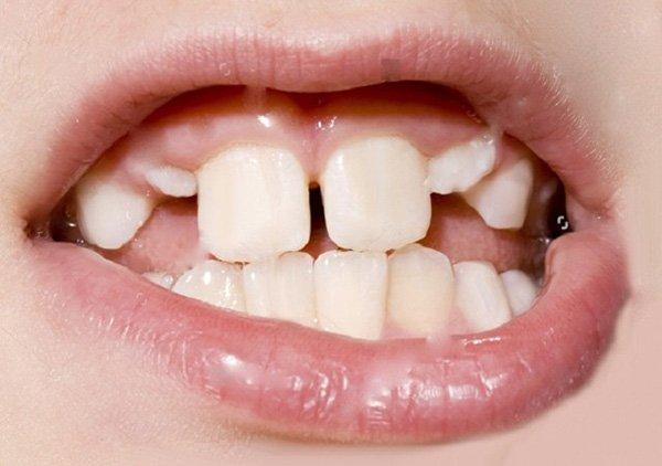 Điều trị răng mọc lệch ở trẻ có ảnh hưởng gì không?