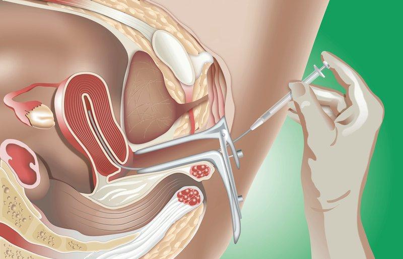 Bơm tinh trùng vào buồng tử cung (IUI) xong bị đau lưng, đau bụng có bình thường?