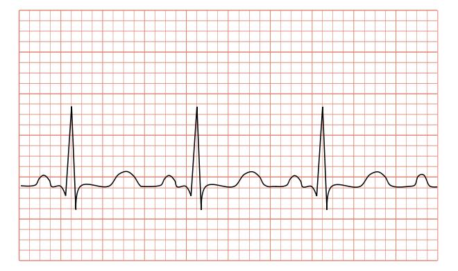 ECG điện tim điện tâm đồ