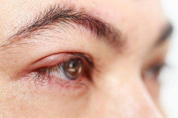 Sưng mắt phù