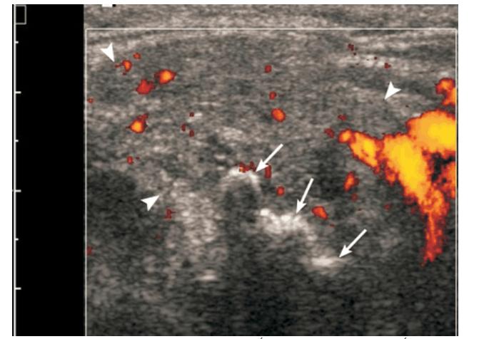 Viêm tuyến nước bọt mạn trên siêu âm
